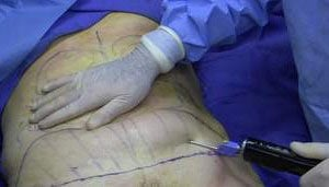 Liposuccion, traitement par le Drainage Lymphatique