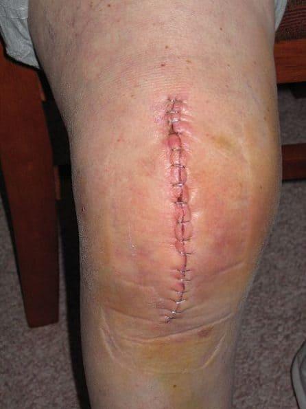 image d'une arthroplastie du genou