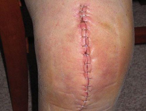 Réduire l'œdème après une arthroplastie totale du genou grâce au drainage lymphatique