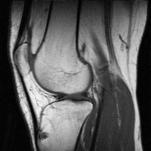 image des ménisques du genou