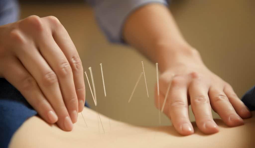 acupuncteur plaçant des aiguilles dans le dos du client
